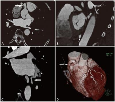 Cardiovascular Imaging Asia